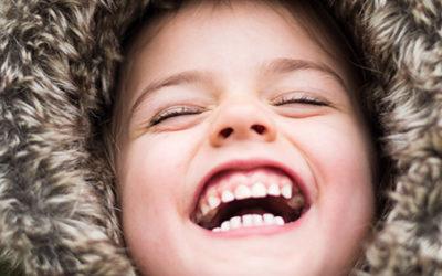 Hypominéralisation des molaires et incisives (MIH) : présentation